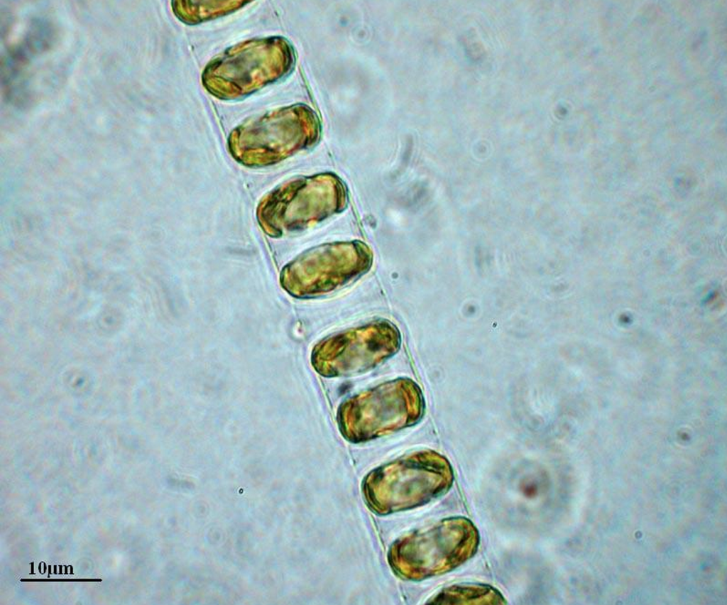Chain Diatom