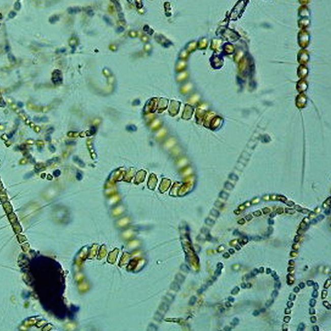 chain diatom from the puget sound